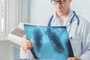 Рентген и кърмене